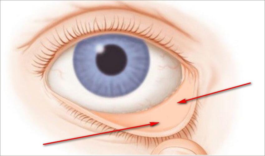симптом низкого ферритина - бледная конъюнктива глаз